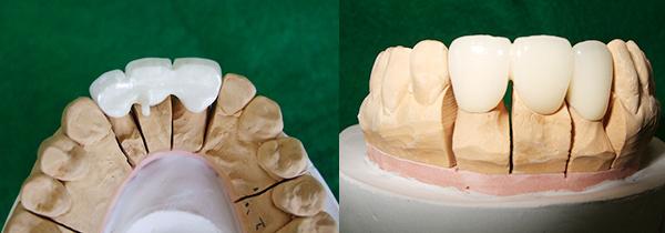 前歯部ブリッジ